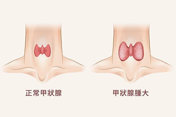 甲状腺肿大的病因,可能是甲状腺亢进,也可能是甲状腺功能低下。(Shutterstock)