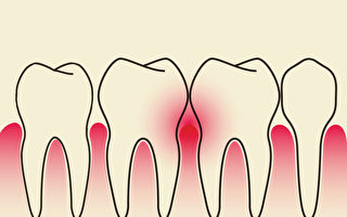 牙齒疾病是從古至今的困擾。中醫如何治療牙周病、保養牙周?(Shutterstock)