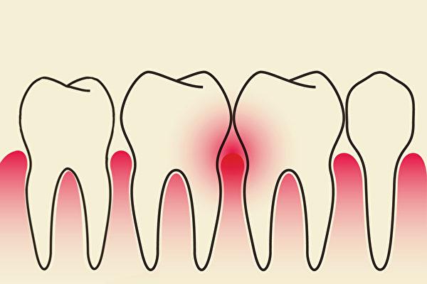 牙齿疾病是从古至今的困扰。中医如何治疗牙周病、保养牙周?(Shutterstock)