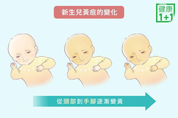 寶寶剛出生幾天後,皮膚從頭到腳逐漸變黃,這很可能就是新生兒黃疸。(健康1+1/大紀元)