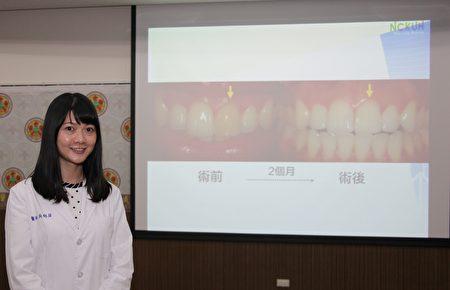 成大醫院斗六分院牙科吳郁屏醫師簡報說明【齒內漂白】的治療與預防。