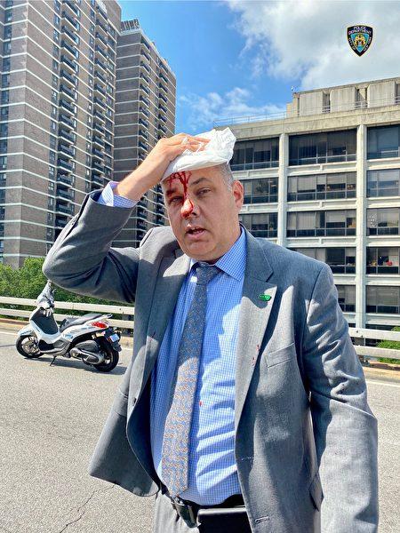 纽约市警官遭支持BLM民众攻击,头破血流。