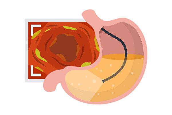 照胃镜会疼痛吗?胃镜检查有何注意事项?(Shutterstock)