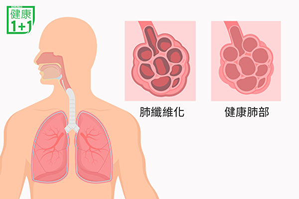 肺部结疤痕的现象,就是肺纤维化。(健康1+1/大纪元)