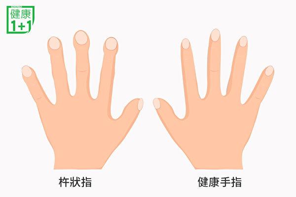 肺纤维化病人因为肺部缺氧,可能出现杵状指的症状,靠近甲床的部分增厚、膨胀如鼓槌。(健康1+1/大纪元)