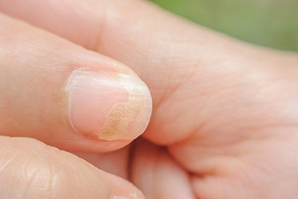 手部若感染灰指甲,可能造成身體其他部位也受到感染。(Shutterstock)