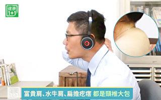 水牛肩又稱頸椎大包、富貴肩、富貴包,如何舒緩?(健康1+1/大紀元)