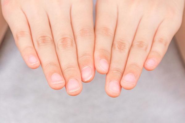 保养好指甲,让双手的指甲变得红润、坚韧而光亮。(shutterstock)