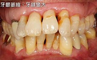 牙周病  影响范围涵盖青壮、中、老年族群
