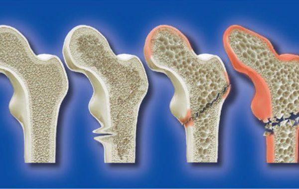 身體缺鈣導致骨質疏鬆的四大主因