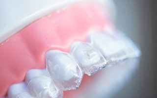 不只是变美 做牙齿矫正的6个理由
