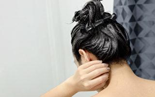 染发可能引起过敏、致癌,哪些人不适合染发?(Shutterstock)