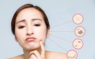 臉上斑點常見有4種 你是哪種?預防長斑是關鍵