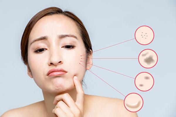臉上長斑的種類常見有老人斑、雀斑、肝斑和發炎後的色素沉澱。(Shutterstock)