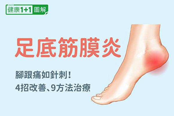 足底筋膜炎症状有哪些?应该如何治疗、复健?(健康1+1/大纪元)