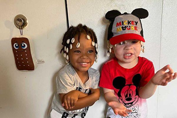 基因遺傳誕下黑白雙胞胎 非裔母親:上帝恩賜
