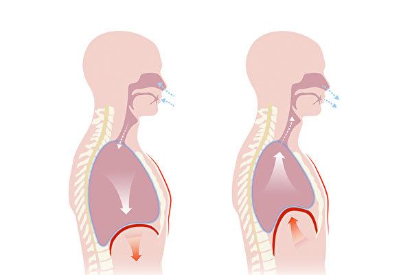 做肺部復健運動可以強化呼吸肌群,改善肺功能,並舒緩肺病症狀。圖為呼吸復健運動的腹式呼吸。(Shutterstock)