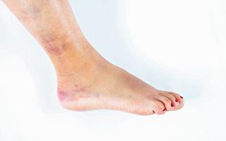 出现扭伤、挫伤等跌打损伤,中医有妙方可以快速消肿、化瘀血。(Shutterstock)