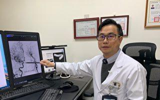 頭頸癌男患者腦中風 顱內動脈取栓救回