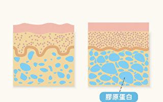 膠原蛋白是皮膚的「萬靈藥」 補充真的有效嗎?