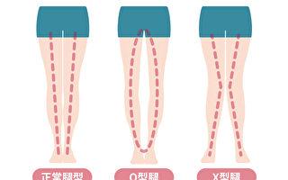 孩子O型或X型腿怎么办?一些症状当心是疾病