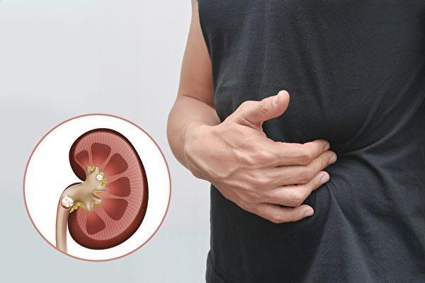 泌尿道结石所引起的绞痛是相当难熬的,大部分的人都是痛在腰部。(Shutterstock/大纪元制图)