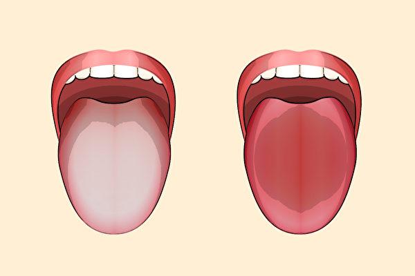 你的正气是否充足?看舌头可以判断。(Shutterstock)