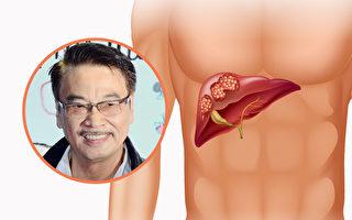 香港知名演员吴孟达因肝癌病逝。肝癌夺命快,如何避免悲剧发生?(Shutterstock、大纪元/大纪元合成)