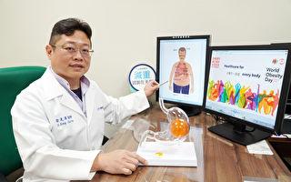 世界肥胖日  共同努力預防治療肥胖