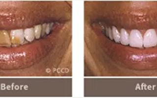 半岛牙齿美容中心 牙齿美容的艺术家