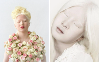因白化病遭父母遗弃 16岁中国少女变名模