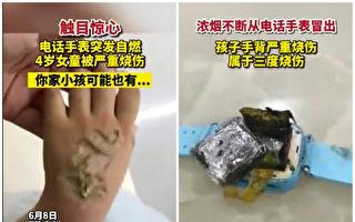 智能手表爆炸 福建一4岁女童被严重烧伤