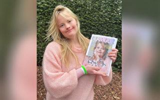 荷蘭24歲唐氏症模特登《魅力》雜誌封面