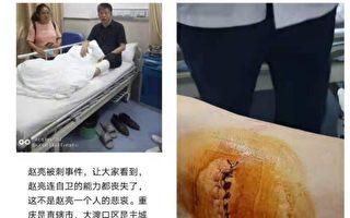 重庆访民赵亮遭维稳人员刺伤左腿 缝40余针