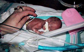 """組圖﹕美國孕婦產下""""微型""""嬰儿僅重10.8盎司"""