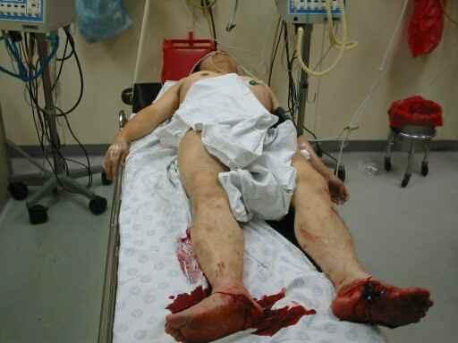 南非槍擊案中,一名叫David Liang的澳籍法輪功學員雙腳受重傷。大紀元新聞圖片。