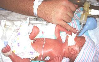 腦死亡婦女產下健康嬰兒