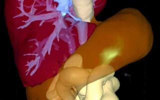 非酒精性脂肪肝可能會演變成肝硬化與肝臟衰竭