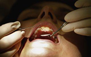 水雷射治牙魅力多 牙科专家观望