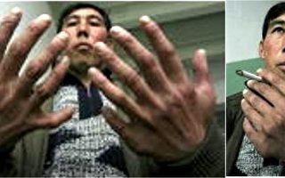 纽约新生儿有十二根手指和脚趾