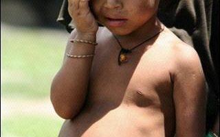 世界糧食日聯合國再呼籲消除饑荒