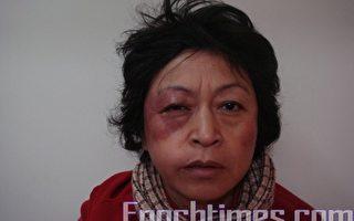 歡迎奧巴馬的上海訪民被暴打致傷