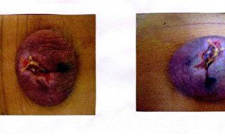 蜂窝性组织炎 肚脐肿成小笼包