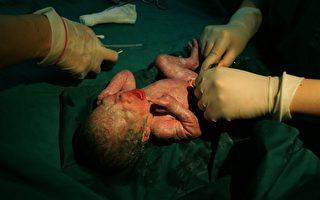 中国剖腹产率世界第一 远超警戒线