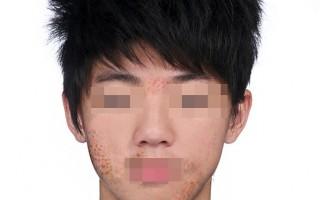 异位性皮肤炎 患者脸红脖子粗