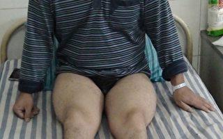 川交警執法欺負殘疾人  撂醫院無人問