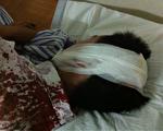 原湖南政法委书记范遵新的打手用酒瓶猛击顾客的脑袋,并且连击数次,使得顾客头破血流不止。(知情者提供)