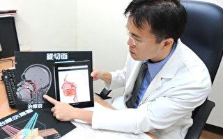 鼻塞久久不癒 可能是罹患鼻咽癌的徵兆