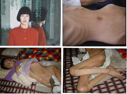 上部:内蒙古巴彦法轮功学员王霞在历经10年非人酷刑折磨后去世。下部:遭受药物摧残和毒打的无锡法轮功学员戴礼娟枯瘦如柴、瘫痪在床直至离世。(明慧网图片拼图)