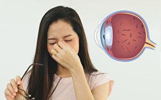 飞蚊症怎么办?2招预防改善飞蚊症
